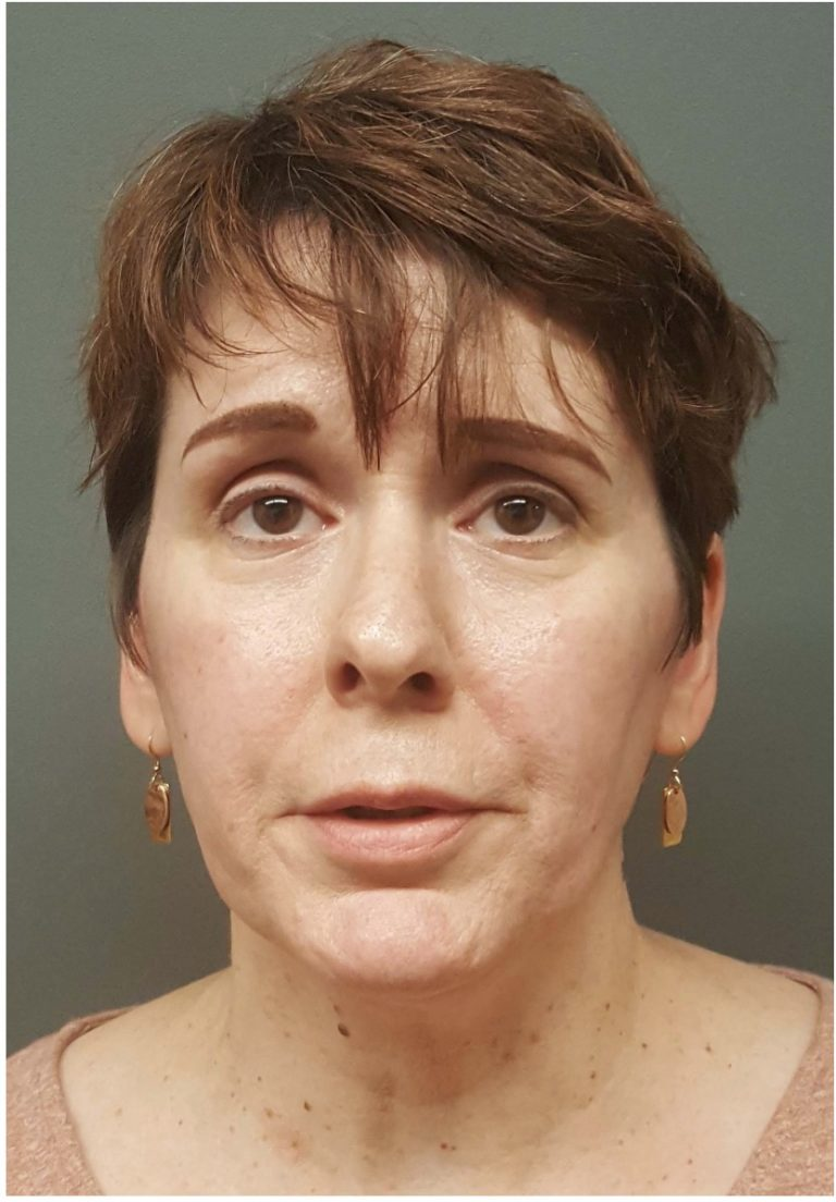 FAIR LAWN WOMAN CHARGED WITH AGGRAVATED SEXUAL ASSAULT, AGGRAVATED SEXUAL CONTACT AND ENDANGERING THE WELFARE OF A CHILD